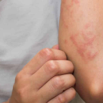 How To Get Rid Of The Hives Caused By Alcohol Withdrawal Syndrome?